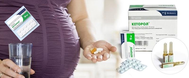 Кеторол при беременности от головной боли