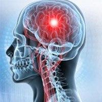 Какими бывают головные боли при опухоли мозга