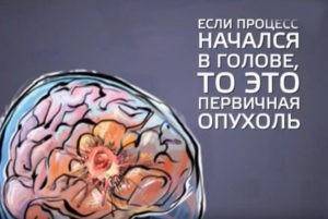 Первичные симптомы опухоли мозга