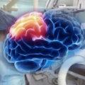 Злокачественная опухоль головного мозга