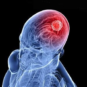 Симптомы злокачественной опухоли