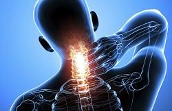 Симптомы головокружения при шейном остеохондрозе