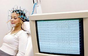Энцефалография сосудов мозга