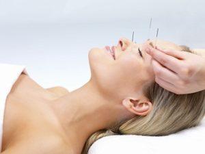 Акупунктура при лечении мигрени