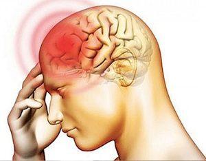 Мигрень, болит голова