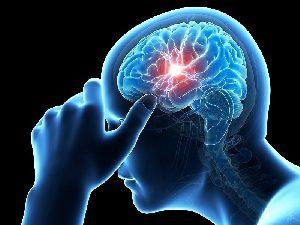 Причины офтальмоплегической мигрени