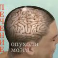 Лечение опухоли головного мозга