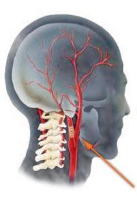 Стеноз сонной артерии: симптомы и признаки