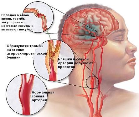 Атеросклероз называют одной из главных причин сужения просвета артерий