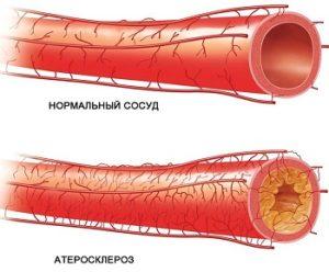 Нормальный сосуд и сосуд, пораженный атеросклеротическими бляшками