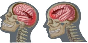 Причины и механика возникновения сотрясения мозга