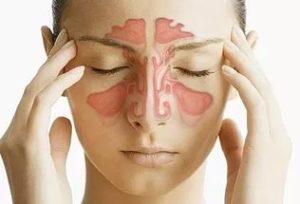 Болит голова при гайморите