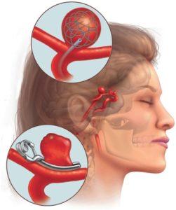 Удаление аневризмы головного мозга