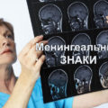 Менингеальные знаки и симптомы у детей и взрослых
