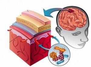 Лечение менингита у взрослых