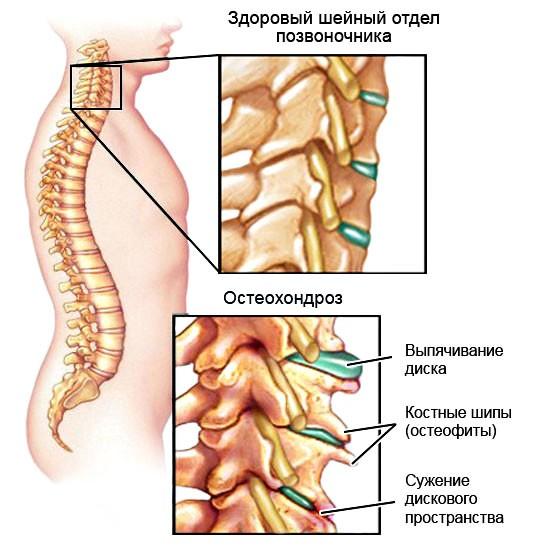 Все о остеохондрозе шейного отдела позвонка