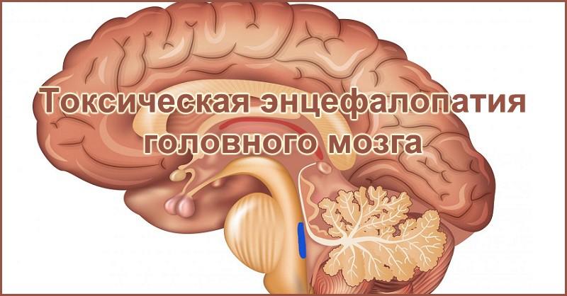 Метаболическая энцефалопатия головного мозга