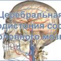 Церебральная ангиодистония сосудов головного мозга
