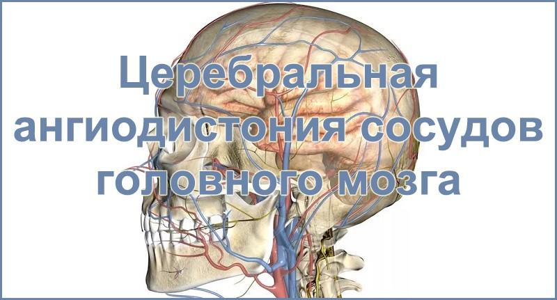 Церебральная ангиодистония сосудов головного мозга: признаки и ...