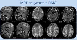 Диагностика лейкоэнцефалопатии