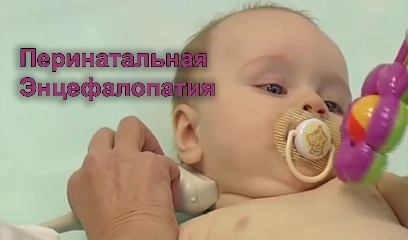 Перинатальная энцефалопатия (ПЭП)