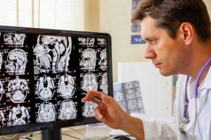Сосудистая энцефалопатия: лечение