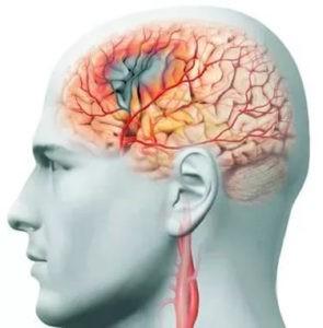 Сосудистые заболевания могут быть причиной возникновения кластерных головных болей