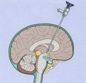 Лечение наружной гидроцефалии головного мозга у взрослых