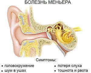 Структура внутреннего уха, болезнь Меньера
