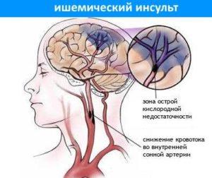 Ишемический инсульт: последствия