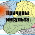 Причины инсульта головного мозга