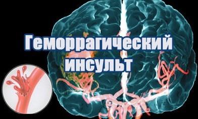 Геморрагический инсульт головного мозга (геморроидальный)