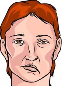 Симптомы и первые признаки микроинсульта