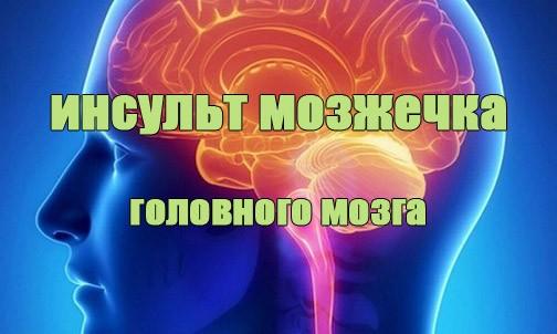 Инсульт мозжечка головного мозга (мозжечковый инсульт)