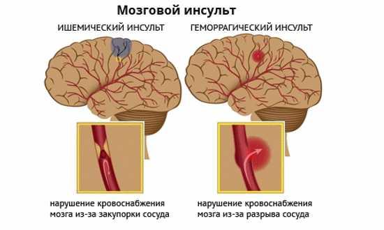 Геморрагический и ишемический инсульт, фото