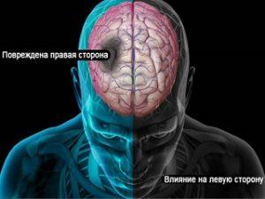 Последствия инсульта правой стороны