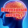 Лакунарный инсульт головного мозга