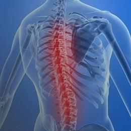 Причины спинального инсульта