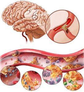 Механизм развития церебрального атеросклероза