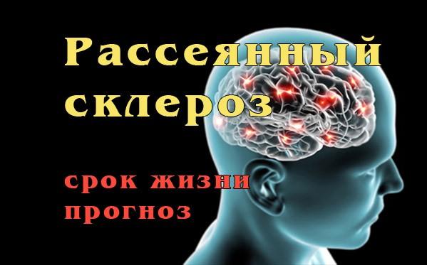 Рассеянный склероз: срок жизни, прогноз