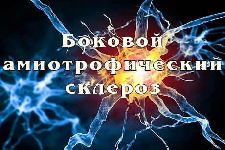 Боковой амиотрофический склероз (БАС): что это за заболевание