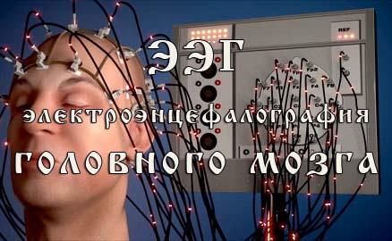 Электроэнцефалография (ЭЭГ) головного мозга