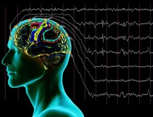 Что показывает энцефалограмма головного мозга