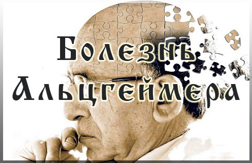 Болезнь Альцгеймера: симптомы, причины, лечение