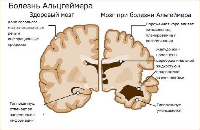 Болезнь Альцгеймера: причины возникновения